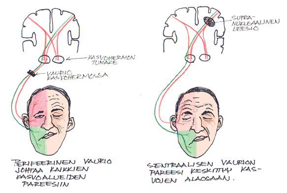 Kasvohermohalvauksen kuntoutus